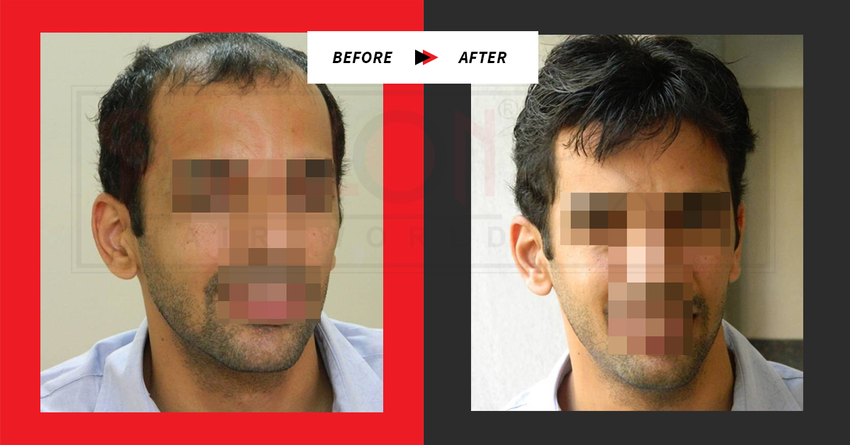 Testimonial Swaroop Before & After : Hair Loss Treatment