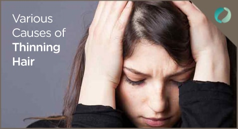 Various Causes of Thinning Hair