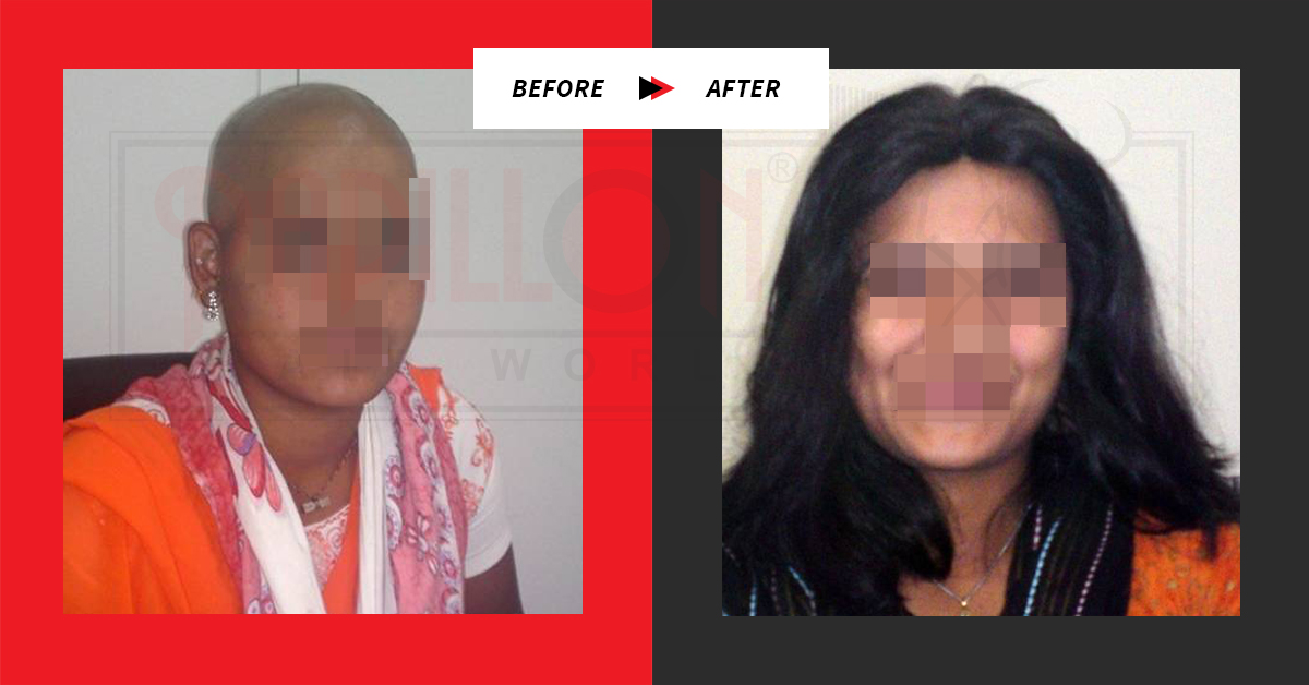 Before / After Testimonials : Hair Loss Treatment for Women