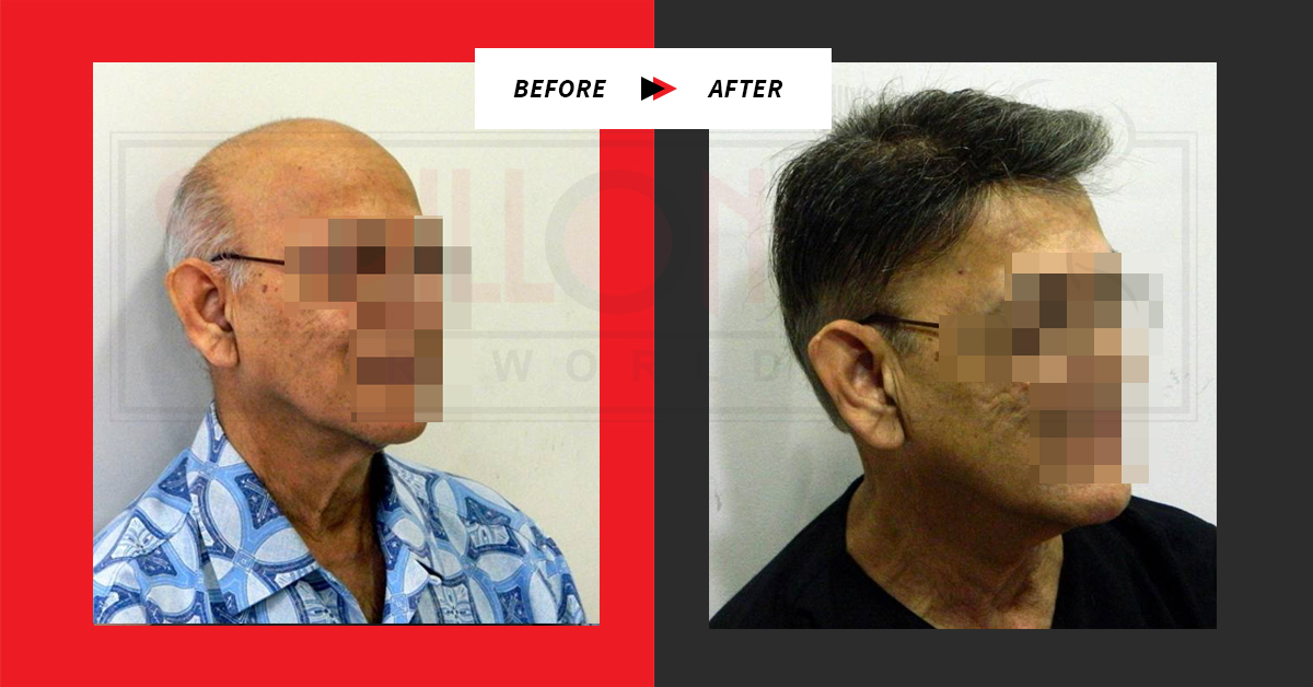 Before / After Testimonial : Hair Loss treatment For Men