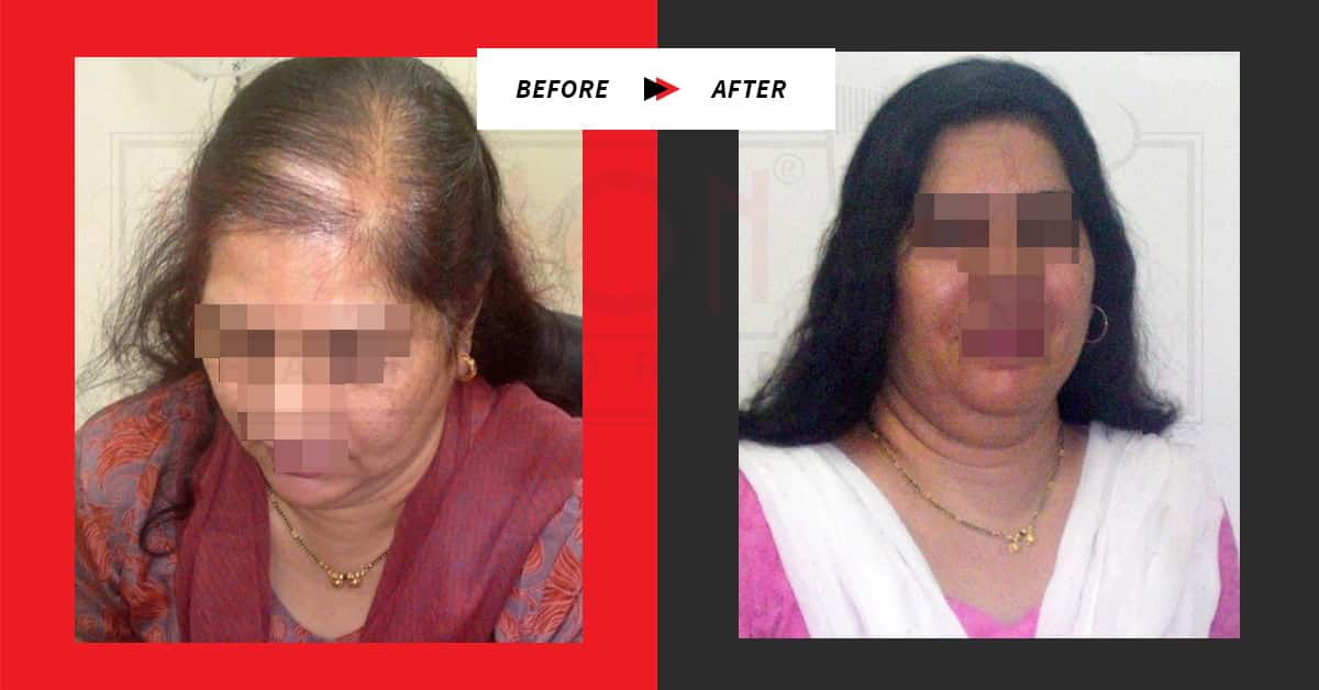 Hair Loss Treatment for Female Testimonials Before / After