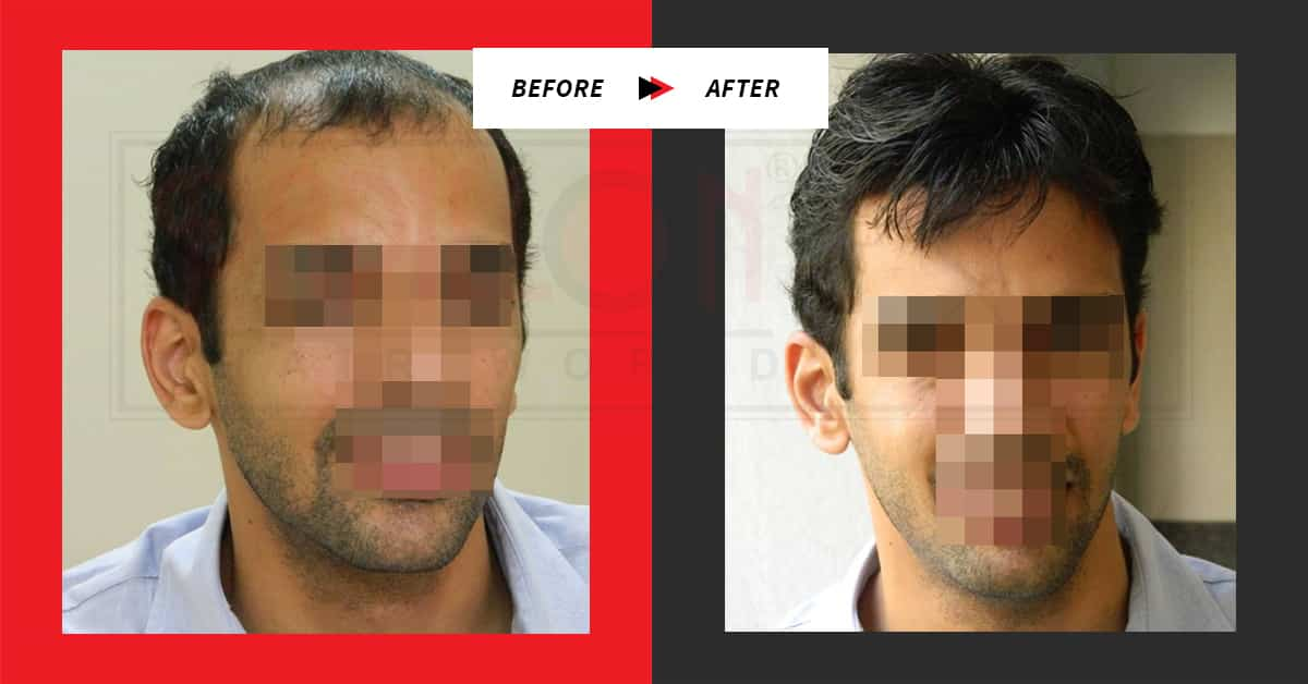 Before / After: Hair Loss Treatment for Men Testimonials