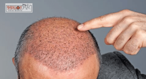 Worried about Hair transplant cost?