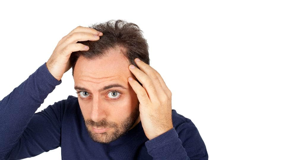 Causes of Male Baldness & treatment – Papillon Hair World